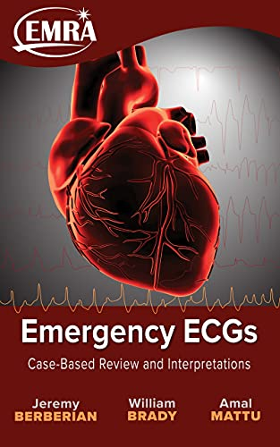 Emergency ECGs: Case-Based Review and Interpretations