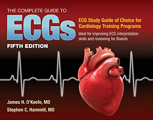 The Complete Guide to ECGs: A Comprehensive Study Guide to...